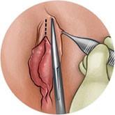 Klitoral Hudoplasti